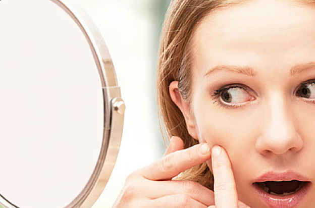 Top Tips to Treat Acne Scars